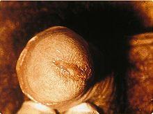 Penile Discharge, chlamydia symptom