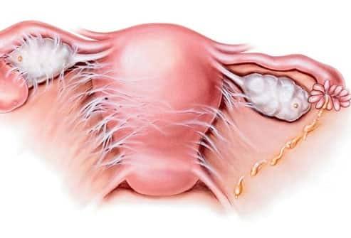 Pelvic inflammation