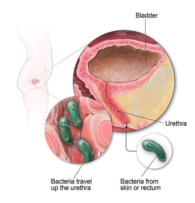Urinary tract infection caused by chlamydia