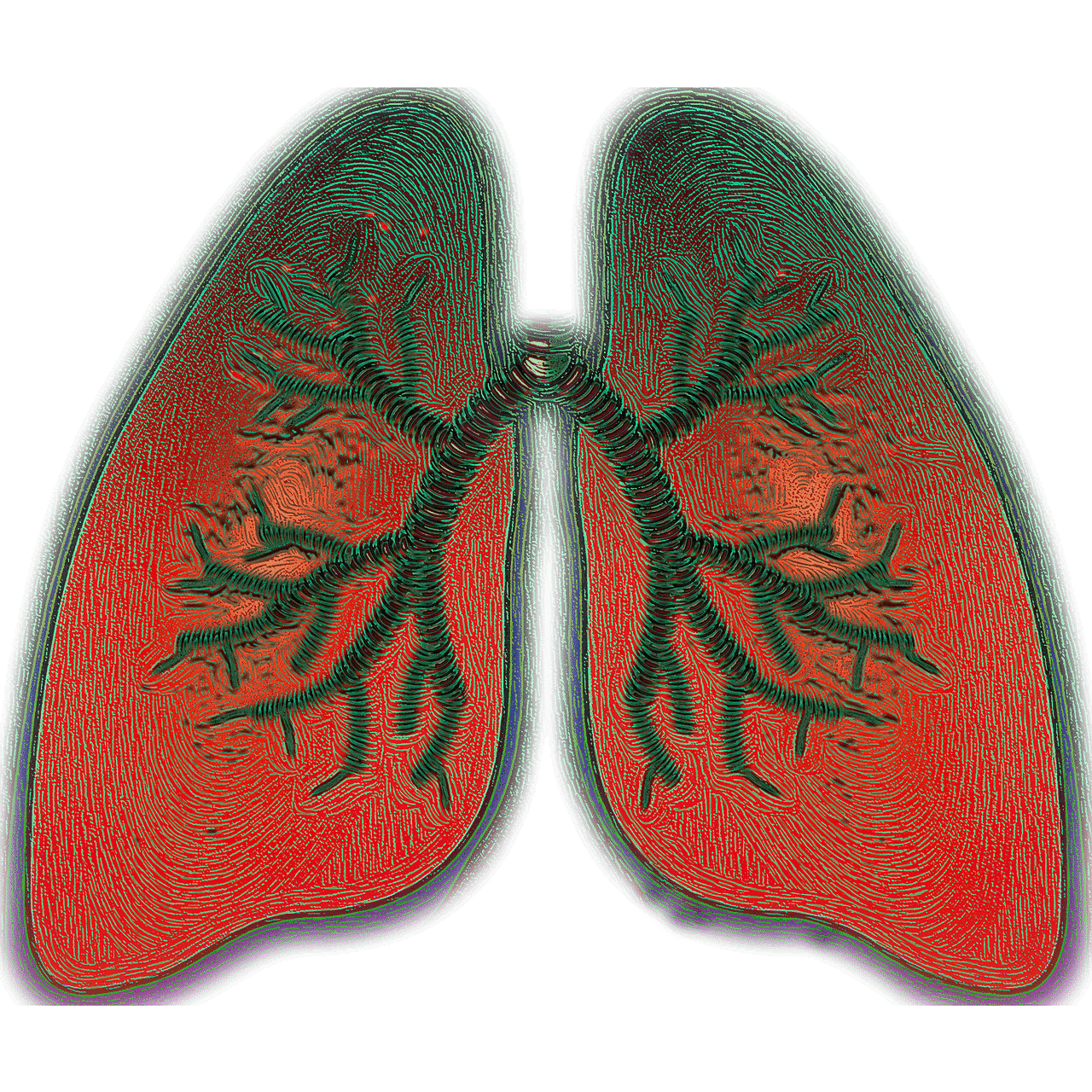 Herpes Virus Entry Mediator Gene Expression Considered to Be A Potential Biomarker of Asthma Severity Image